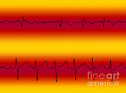 Flutter Art - Atrial Flutter & Atrial Fibrillation by Science Source