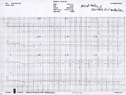 Flutter Art - Atrial Flutter, Ecg by Science Source