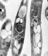Anthracis Prints - Bacillus Anthracis, Tem Print by Science Source