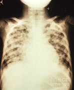 Viral Prints - Bilateral Pulmonary Effusion, X-ray Print by Science Source