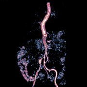 Vascular Condition Posters - bilateral Renal Artery Stenosis, Mra Sca Poster by Du Cane Medical Imaging Ltd