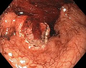 Endoscope View Photos - Bleeding Stomach Ulcer With Cancer by Gastrolab