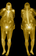 Isotopes Posters - Bone Scan Poster by Medical Body Scans