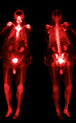 Obese Prints - Bone Scans Print by Medical Body Scans