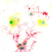 Cytology Posters - Brain Cells, Light Micrograph Poster by Riccardo Cassiani-ingoni