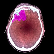 Diagnostics Prints - Brain Haemorrhage, Ct Scan Print by Du Cane Medical Imaging Ltd