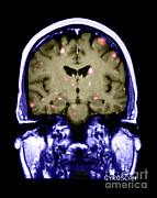 Mets Posters - Brain Metastasis From Breast Cancer Poster by Medical Body Scans