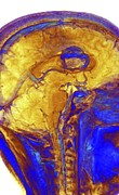 3-d Metal Prints - Brain Tumour, 3-d Mri Scan Metal Print by Pasieka
