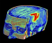 3-d Metal Prints - Brain Tumour, 3d-mri Scan Metal Print by Pasieka