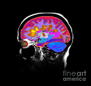 Multiple Sclerosis Posters - Brain With Multiple Sclerosis Poster by Medical Body Scans