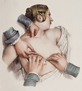 Breast Photo Metal Prints - Breast Removal Surgery Metal Print by Mehau Kulyk