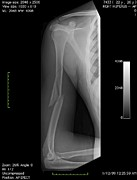 Disorder Framed Prints - Broken Arm Bone, Digital X-ray Framed Print by Du Cane Medical Imaging Ltd