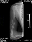 Broken Arm Bone, Digital X-ray Print by Du Cane Medical Imaging Ltd