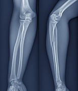 Two By Two Posters - Broken Arm, X-ray Poster by Zephyr