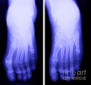 Metal Pin Posters - Broken Toe Poster by Ted Kinsman