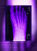 Corrected Posters - Bunion After Surgery, X-ray Poster by Miriam Maslo