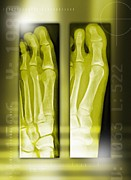 Corrected Posters - Bunion Before And After Surgery, X-rays Poster by Miriam Maslo