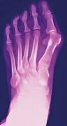 Diagnostics Prints - Bunion, X-ray Print by Miriam Maslo