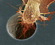 Squamous Posters - Cancer Cell Migrating, Sem Poster by A. Weston, S. Gschmeissner, Debra