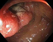 Endoscope View Photos - Cancer Of The Colon And Rectum by Gastrolab