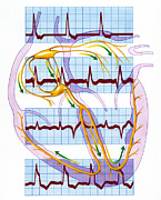 Cardiac Posters - Cardiac Arrhythmia With Heart And Ecgs Poster by John Bavosi