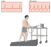 Treadmill Prints - Cardiac Stress Test, Artwork Print by Peter Gardiner