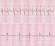 Shock Prints - Cardioversion Print by Science Source