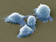 Quartet Posters - Cervical Cancer Cells, Sem Poster by Steve Gschmeissner