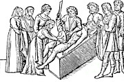 Woodcut Photo Framed Prints - Cesarean Section, 16th Century Framed Print by Science Source