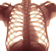 Heart Healthy Posters - Chest X-ray Of A Healhty Human Heart Poster by