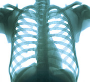 Heart Healthy Metal Prints - Chest X-ray Of A Healthy Human Heart Metal Print by