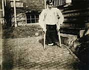 1910s Portrait Prints - Child Labor, Frank, Whose Legs Were Cut Print by Everett
