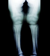 Knees Framed Prints - Childhood Rickets, X-ray Framed Print by Zephyr