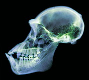 Chimpanzee Glass - Chimpanzee Skull, X-ray by D. Roberts