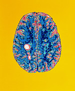 Multiple Sclerosis Posters - Col. Mri Scan Of A Brain With Multiple Sclerosis Poster by