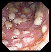 Infection Art - Colitis by David M. Martin, Md