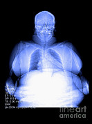 X-ray-x-ray Image Art - Color Enhanced Digital X-ray Of Obesity by Medical Body Scans