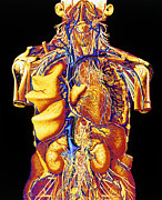Cava Prints - Colour Artwork Of Abdominal & Thoracic Nerves Print by Mehau Kulyk