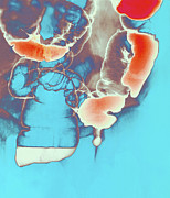 Hernia Prints - Coloured Barium X-ray Of An Inguinal Hernia Print by Mehau Kulyk