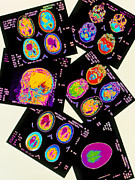 Brain Scan Prints - Coloured Ct Scans Of The Brain On A Light Box Print by Mehau Kulyk