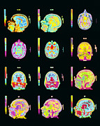 Brain Scan Prints - Coloured Mri Scans Of Human Brain (multiple Views) Print by Mehau Kulyk