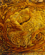Uterus Art - Coloured Sem Of Adenocarcinoma Of The Human Uterus by Professors P.m. Motta & S. Makabe