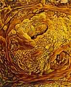 Coloured Sem Of Adenocarcinoma Of The Human Uterus Print by Professors P.m. Motta & S. Makabe