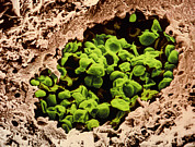 Aids Framed Prints - Coloured Sem Of Pneumocystis Carinii In Aids Lung Framed Print by A.b. Dowsett