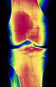 Knee Posters - Coloured X-ray Image Of A Normal Knee-joint Poster by Pasieka
