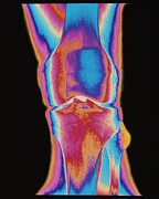 Diagnosis Framed Prints - Coloured X-ray Of A Human Knee Joint (front View) Framed Print by Mehau Kulyk