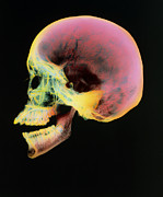 Skull Photos - Coloured X-ray Of A Human Skull Seen From The Side by D. Roberts