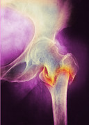 Femur Prints - Coloured X-ray Of Femur Fracture In Osteoporosis Print by Medical Photo Nhs Lothian
