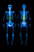 Isotopes Posters - Compression Fracture Poster by Medical Body Scans