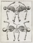 Transactions Framed Prints - Conjoined Twin Skeletons, 18th Century Framed Print by Middle Temple Library